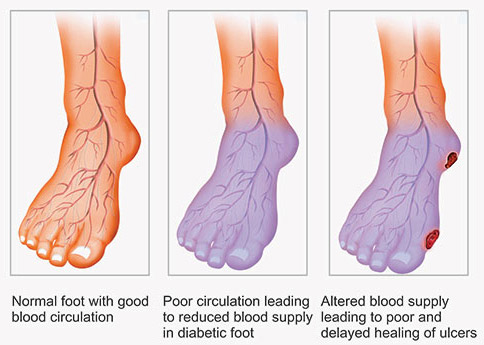What are the signs of poor blood circulation in feet