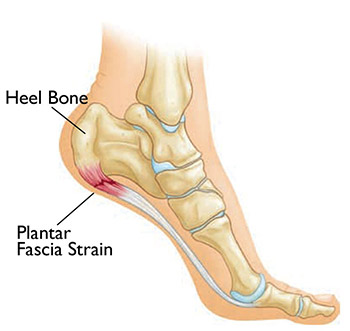 Are Foot Massagers Good For Plantar Fasciitis