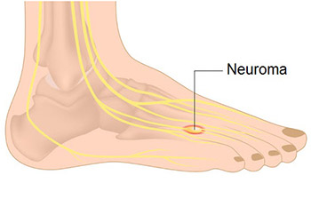Signs and symptoms of neuropathy in your feet